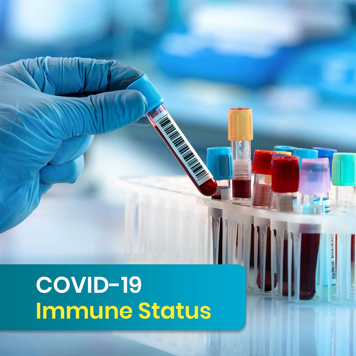 Complete Covid 19 Antibody Test